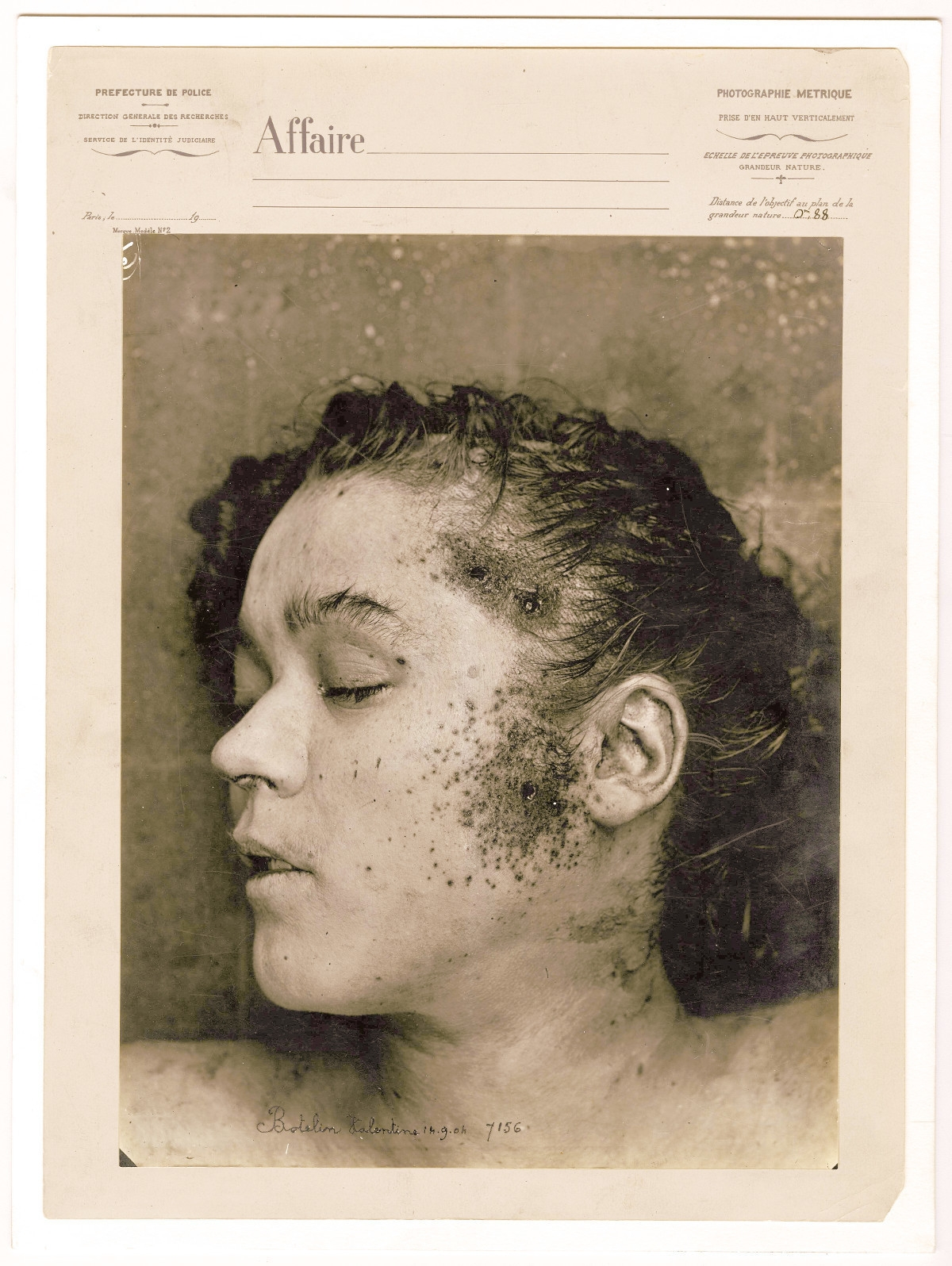 Valentine Botelin após a autópsia, em 14 de setembro de 1904. Com a cabeça e o cabelo limpos, é possível observar três perfurações de arma de fogo na têmpora e na face esquerda.